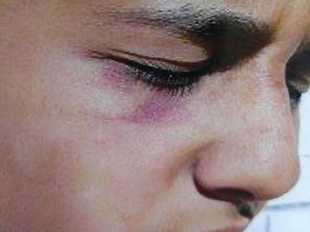 شاهد الصور : مدير مدرسة يضرب طالبًا ويدوس عليه في القدس !