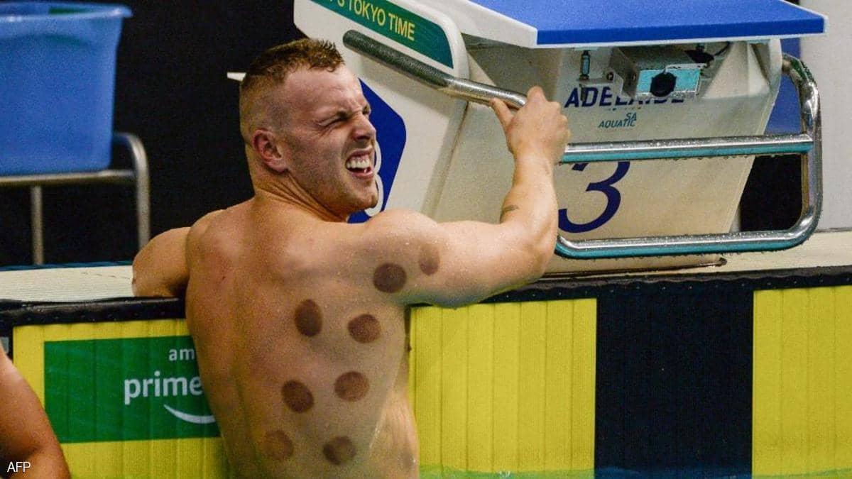 طوكيو 2020.. ما هي حقيقة البقع الغريبة على أجساد السباحين؟