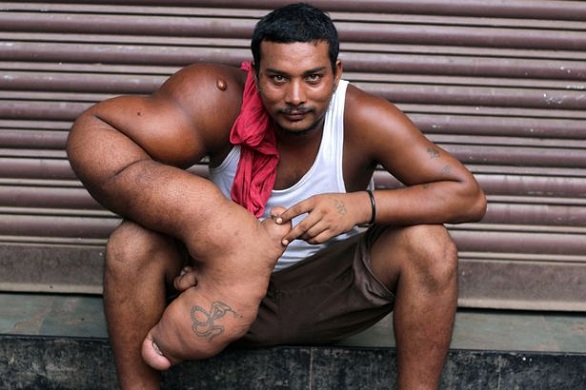صور   هنديّ بذراع وزنها 20 كيلوغرامًا