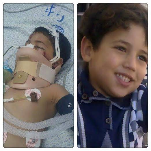 مناشدة للرئيس عباس لإنقاذ طفل بغزة