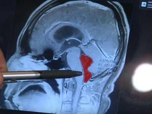 دودة في مخ رجل لمدة 10 سنوات.. كيف دخلت وماذا فعلت بدماغه؟