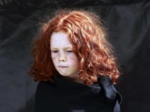 اكتشاف سر ارتفاع الشعور بالألم لدى أصحاب الشعر الأحمر