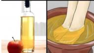 ماذا يحصل حين تغمسون قدميكم في خلّ التفاح مرّة بالاسبوع؟
