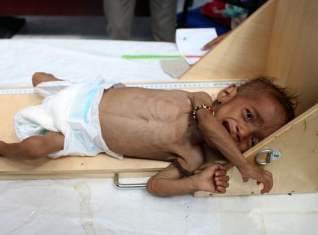 """""""منظمة الطفولة"""": طفل يمني يموت كل 10 دقائق بسبب الحرب"""