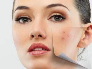 تعرف إلى 6 طرق يؤثر بها التوتر على بشرتنا