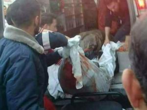 إصابة مواطنين برصاص جيش الاحتلال شمالي الضفة